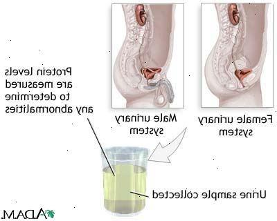 vita blodkroppar i urin