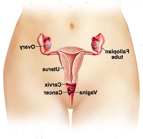 Cancro vaginal. Tipos de câncer vaginal.